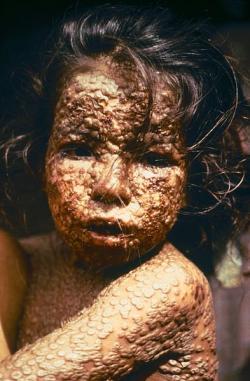 Pravé neštovice vBangladéši, pár let před vymýcením. Kredit: CDC/James Hicks.