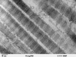Kolagenová vlákna typu I (ze savčí plicní tkáně) pohledem transmisního elektronového mikroskopu. Podle autorů nové studie byly pozůstatky stejných struktur objeveny i v 67 milionů let staré fosilii tyranosaura. Kredit: Louisa Howard; Wikipedie (volné dílo)