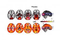 Nahoře působení placeba, dole LSD: Kredit: Carhart-Harris et al. 2016