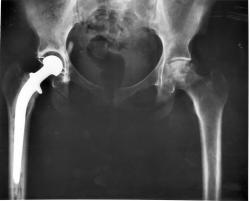 Prorazí slitina titanu se zlatem vkloubních náhradách? Kredit: NIH.