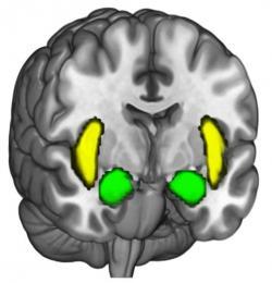 Když vládnou amygdala, tak končí rozumná debata. Kredit: Brain and Creativity Institut / USC.