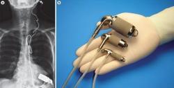 Implantované podporné čerpadlá Jarvik sú dostupné aj pre deti. Zdroj: (Stephen Westaby, et al., Cardiogenic shock in ACS. Part 2: role of mechanical circulatory support, Nature Reviews Cardiology).