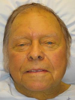 Pacient so žltačkou. Kredit: James Heilman, MD, Wikimedia.