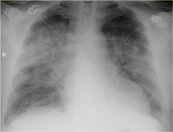 """V strede rentgenovej snímky je tieň srdca, s ním susedí pľúcne tkanivo, v spodnej časti """"zahmlené"""" nadbytočnou tekutinou, hore je tekutiny menej - typický nález pri pokročilom srdcovom zlyhávaní. (Elektródy od kardiomonitora si netreba všímať). Kredit: Radiology Assistant"""