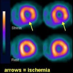 Záťažové rádionuklidové vyšetrenie so zobrazením nedokrvenia čiasti srdcového svalu (Kredit: Rescuetrial.org)