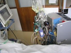 Zariadenie na mimotelovú membránovú oxygenáciu - ECMO
