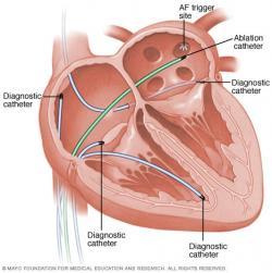 Pri rádiofrekvenčnej ablácii je srdce plné katétrov – väčšina je diagnostických, umožňujúca snímanie a podrobnú analýzu elektrokardiogramu, jeden slúži na abláciu (na obrázku ten zelený). (Kredit: Mayo Faundation for Medical Education and Research).