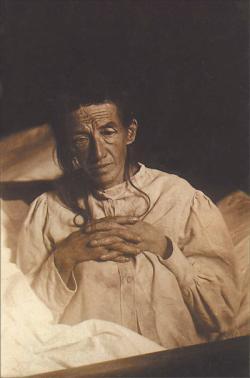 Auguste Deter, padesátiletá žena v roce 1902. První případ osoby u níž Alois Alzheimer tuto chorobu popsal. Později nemoc podle objevitele dostala své jméno. (Volné dílo, Wikipedia)