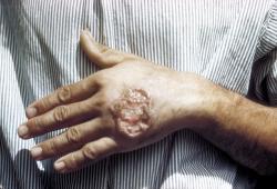 Kožní forma leishmaniózy. Vchudých zemích je leishmanióza rozšířenou smrtelnou nemocí, často se šířící jako epidemie. (Kredit:D.S. Martin, Centers for Disease Control and Prevention)