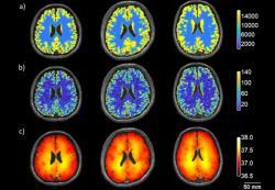 Ukázka postupu sestavování mapy - jeden z mnoha možných řezů mozkem tří osob. a) metabolické teplo. b) průtok krve mozkem. c) modelově předpovězené teploty. (Kredit: Sung, et al: Commun. Phys. 10.1038. CC BY 4.0).