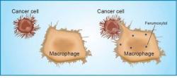 Imunitní buňky zvané makrofágy ferumoxytol vybudí k ničení nádorových buněk. (Kredit: Amy Thomas, Stanford)