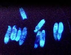 Photorhabdus luminescens napadající housenku Galleria mellonella. Kredit:  Todd CicheCalifornia Institute of Technology