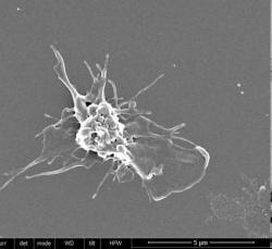 """Aktivovaná """"obyčejná"""" krevní destička s typickými výběžky. Snímek byl pořízen rastrovacím elektronovým mikroskopem.  Kredit: Mikhail Panteleev"""