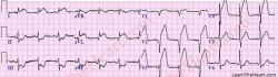 Typický obraz srdcového infarktu na EKG vyrieši problém raz a navždy. Ak je však elektrokardiogram negatívny, stanovenie alebo vylúčenie ochorenia koronárnych tepien srdca môže byť aj veľmi komplikované