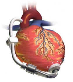 Podporné čerpadlo pre ľavú srdcovú komoru (LVAD)