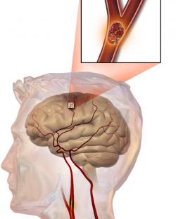 Cévní mozková příhoda(téžmozková mrtvice,mozkový infarkt neboiktus). Ať už je příčinou uzávěr mozkovétepny(tzv. Ischemická příhoda), nebo na podkladě krvácení z mozkové cévy (hemoragická příhoda), v obou případech to znamená pro neurony v daném okrsku problém a hrozí jim odumření. Enzymatické postrčení astrocytů enzymem CD38 vyhlídky postižených neuronů u hlodavců vylepšuje. Nic by nemělo bránit tomu, aby se tak dělo i u lidí.   (Kredit: Blausen Medical Communications, Inc)
