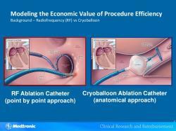 Porovnanie rádiofrekvenčnej ablácie a kryoablácie: Pri klasickej rádiofrekvenčnej ablácii (vľavo) sa ústie pľúcnej žily izoluje postupnými bodovými léziami, pri balónovej kryoablácii (vpravo) vznikne naraz kruh zmrazeného tkaniva ako odtlačok priloženého balóna. (Kredit: Výrobca kryobalónov Medtronic).