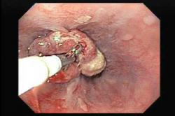 Odber vzorky - biopsia z karcinómu žalúdka. Kredit: Dr.Murra, El Salvador Atlas of Gastrointestinal Video Endoscopy.