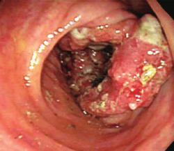 Kolonoskopický nález pokročilého karcinómu hrubého čreva. (Kredit: Fu K, et al., World J Gastroenterol)  DOI: 10.3748/wjg.v12.i47.7715]
