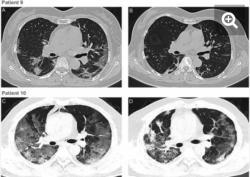 """Snímky z vyšetření hrudníku dvou pacientů počítačovou tomografií. Nahoře pacient č. 9 před podáním transfúze a necelý týden poté. Vlevo je obraz """"mléčně zakalený"""" s patrnými lézemi poblíž pohrudnice. U obou pacientů je vpravo na snímcích patrný ústup lézí a výrazné zlepšení stavu plic. Kredit: Kai Duan et al., PNAS,2020."""