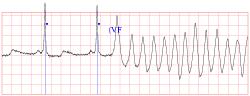 A je zle! EKG záznam z kardiomonitora zachytáva dva posledné normálne sťahy srdca (označené modrými bodkami) a potom komorovú fibriláciu (VF). Pacient upadol do klinickej smrti. (Kredit: Creighton University Ventricular Tachyarrhythmia Database)
