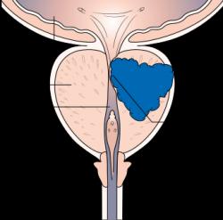 V Evropě je karcinom prostatydruhým nejčastějšímzhoubným nádoremmužů a třetí nejčastější příčinou jejich úmrtí na maligní nádor. Bohužel ho často zaregistrujeme až když nás tlakem na močovod připraví o mocný střik. Většinou  začíná tkáň bujet na periferii a než začne stlačovat močovod, trvá to dlouho a pak už je nemoc v pokročilém stadiu. (Kredit: Nuada Prostate Care)