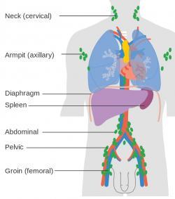 Lokalit, kde se lymfomy tvoří často, je hodně. Kredit: Cancer Research UK, CRUK, Wikipedia