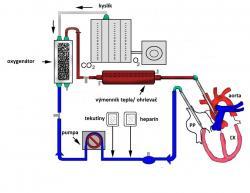 ECMO - mimotelová oxygenácia krvi - schéma zapojenia zariadenia: krv je odoberaná z pravej predsiene, prechádza výmenníkom tepla, oxygenátorom, čerpadlom, doplní sa podľa potreby o tekutinu a pridá sa heparín na zníženie zrážanlivosti krvi, aby sa zabránilo trombóze - tvorbe zrazenín v cievach, a krv je odvedená do aorty.