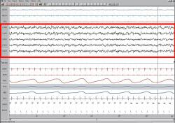 Záznam elektrického potenciálu v době spánku (EEG) svědčí o vysoké mozkovéaktivitě.Při přednáškách v posluchárně rád  lenoší - viz zde.  http://richmerlo.blogspot.com/2013/10/