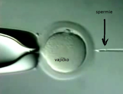 ICSI – intracytoplasmic sperm injection