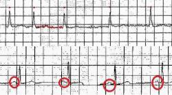 EKG záznam fibrilácie predsiení: nepravidelnosť činnosti srdca sa dá rozoznať ľahko, podstatné pre diagnózu je chýbanie P vlny na EKG - zakrúžkované na dolnej, normálnej krivke.