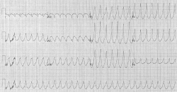 EKG záznam komorovej tachykardie. Kredit: Karthik Sheka, M.D. , CC BY-SA 2.5.