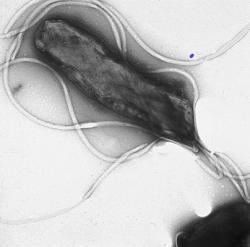 """Helicobacter pylori(název složen ze slov: """"helix""""– šroubovice, """"bacter""""– bakterie, """"pylorus""""– vrátník) je druh mikroaerofilnígramnegativní patogenní bakterie, jež napadá sliznici žaludku. Odhaduje se, že je ve vyspělých zemích touto bakterií infikována více než polovina dospělých po 60 letech věku,ačkoliv nemusí vždy vyvolat onemocnění. Kredit: Yutaka Tsutsumi, Fujita Health University School of Medicine, Wikipedia."""