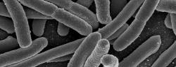 Dobrý sluha, zlý pán.Snímek bakterie Escherichia coli pořízený elektronovým skenovacím mikroskopem. Kredit: Rocky Mountain Laboratories, NIAID, NIH. Public domain.