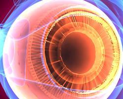 Dědičné degenerativní onemocnění sítnice postihuje 2 miliony lidí. Relativně vysoké procento lidí s retinitis pigmentosa trpí i poruchami dalších smyslů, zejména hluchotou. Kredit: Duke University Medical Center.