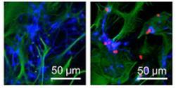 Obrázky ukazují jak neurony uvedené do stresu dopadnou. Vlevo vědci astrocytům jejich ochotu pomáhat ztížili.  Neurony s lenivými astrocyty v kontaktu po 48 hodinách hynou. Na pravém obrázku astrocyty své neurony v jejich špatném čase na holičkách nenechaly. Podpořily je dodáním funkčních mitochondrií. Imunoenzymatické barvení buněk dokazuje že k převodu mitochondrií skutečně došlo a že se po něm neuronům daří vcelku dobře. (Kredit: Hayakawa et al.  Massachusetts General Hospital, 2016)