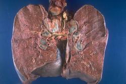 Bilaterální hilová lymfadenopatie - častý nález nemocných sarkoidózou. Zvětšené a zmnožené mízní uzliny. (tmavší a nazelenalá ložiska) v místech, kterým se odborně říká hily. To jsou místa kudy doplicvstupují bronchy (průdušky), cévy a nervy..  Kredit: Yale Rosen, M.D.    http://granuloma.homestead.com/sarcoidosis_gross.html