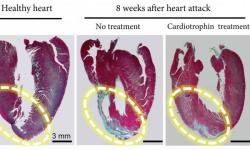 Účinok cardiotrophinu-1 pri experimentálnom infarkte u krysy:Ložisko nedokrvenia (vľavo) sa nezahojilo tenkou väzivovou jazvou (stredný obrázok, modrá farba), ale dorástla v ňom svalovina normálnej hrúbky (obrázok vpravo).  Credit: Cell Research