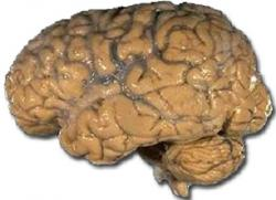 Průměrnými teplotami se naše mozky prakticky neliší. Detailnější pohled ukáže, že i ve zdravém mozku existují tepelné asymetrie. Pro dělání závěrů z vyšetření mozku je ale nutné brát v úvahu nejen asymetrii, ale i individualitu prostorových teplotních variací.  (Kredit: NIH, volné dílo.)