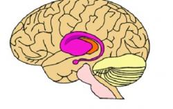 Huntigtonova choroba je dědičné neurodegenerativní onemocnění charakteristické nekoordinovanými trhavými pohyby těla a sníženými mentálními schopnostmi. Dědí se autozomálně dominantně, což znamená, že k projevu nemoci stačí zdědit jednu alelu. Nejprve postihuje bazální ganglia a přidružené oblasti mozku - purpurově. (Kredit: FDA)