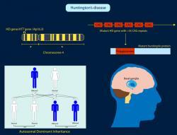 Příčinou Huntingtonovy choroby je porucha na 4. lidském chromozomu, kde se opakuje příliš mnoho tripletů CAG. Takto postižený gen se postará o tvorbu poglutaminu – proteinu huntingtin. Mitochondrie s počkozenou membránou nejsou sto, zajistit pro koncové části neuronů dostatek energie. Buňkám se výběžky (neurity) zkracují a přichází o synapse.