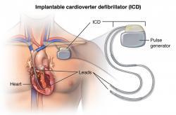 Implantovateľný kardioverter - defibrilátor dokáže aj viackrát zachrániť pacientovi život.  Ale sú situácie, kedy je vhodné toto zariadenie vypnúť