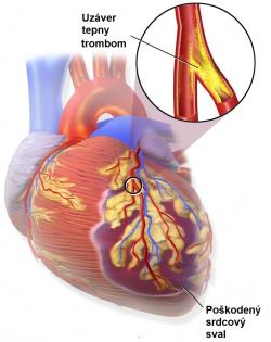 Na počiatku infarktu je vznik krvnej zrazeniny - trombóza koronárnej tepny.