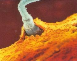 """Na nově vznikající život """"svůj stres"""" samci přenášejí prostřednictvím změněných molekul mikroRNA. Ty se pak jakýmsi autostopem na již hotových spermiích, dostávají do vajíčka, kde svou přítomností ovlivní manifestaci genů. Výsledkem je změněný vývoj mozku. Kredit: Fertility and Sterility."""
