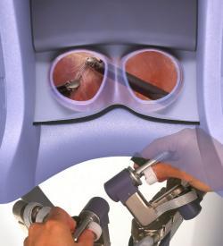 Pracovisko chirurga zblízka: dole sú ovládacie prvky pre ruky. (Kredit:  Intuitive Surgical)