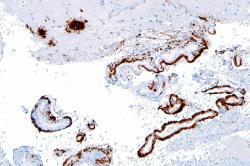 U zemřelých na Alzheimerovu chorobu (AD), lze v mozkové kůře snadno najít okrsky s nahromaděným amyloidem beta. Na preparátu se zbarvují hnědě. (Kredit Nefron, Wikipedia CC BY-SA 3.0)