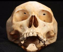 Lebka pacienta u něhož provedli transorbitální lobotomii. (Kredit: memento.muttermuseum.org)