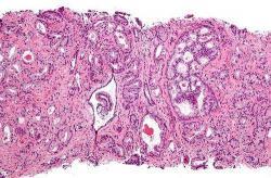 Nejčastější forma rakoviny prostaty - acinární adenokarcinom. Kredit: Wikipedia