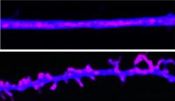 Paměťové stopy jsou ukládány pomocí prionovým proteinům podobným molekulám. Vědci je nazvali CPEB. V mozku udržují synapse (spodní část obrazu). Když CPEB priony inaktivujeme, synapse se hroutí a paměť slábne (viz stejný neuron v horní část obrázku).Kredit: Lab. David Sulzer, CUMC