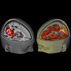 Vlevo mozek na placebu, vpravo LSD. Kredit: Imperial College